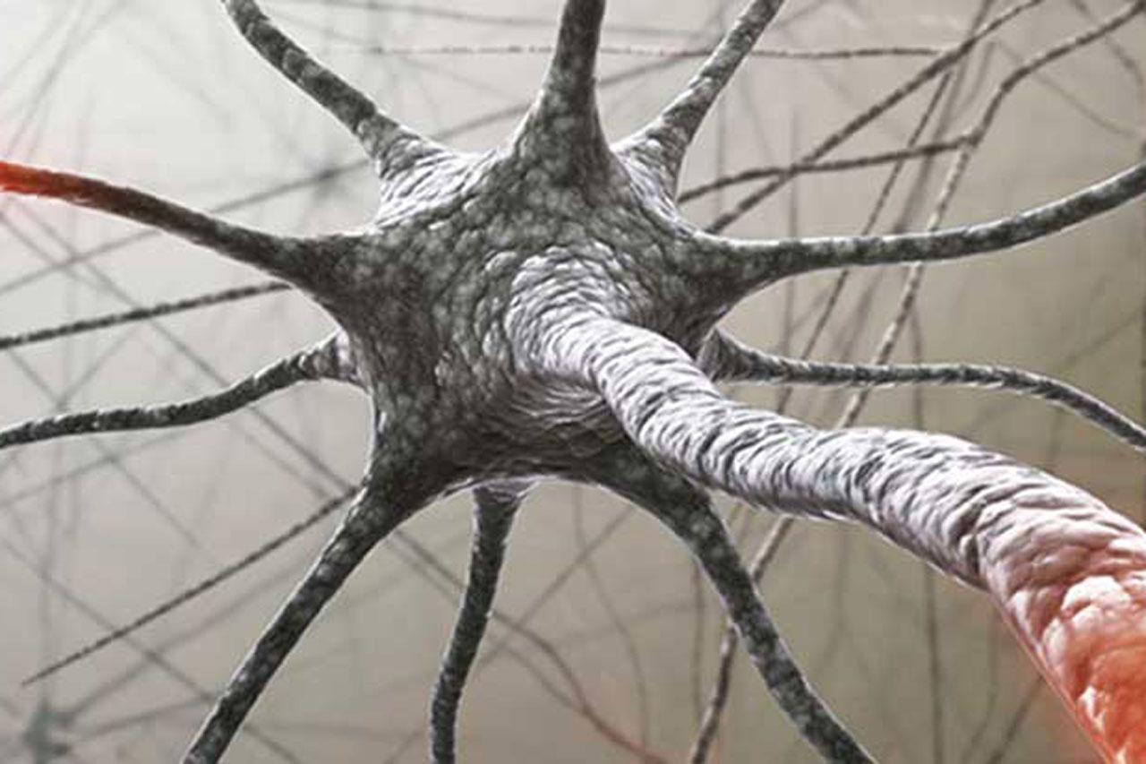 EM esclerose